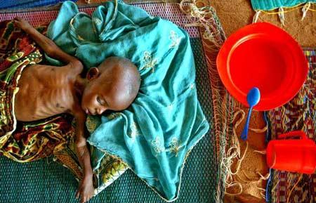 图文:严重营养不良的尼日尔婴儿