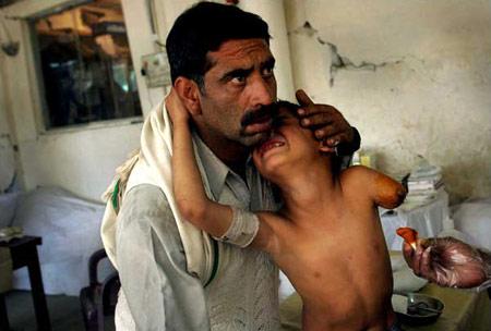 图文:南亚地震后被截肢的孩子