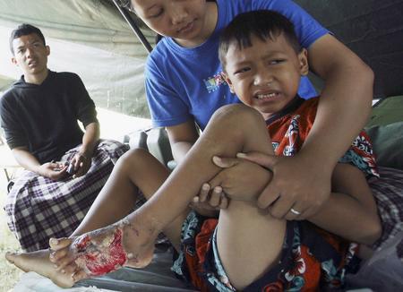 图文:幸存儿童在治疗脚伤